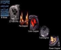 scann